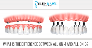 What is the difference between All-on-4 and All on 6?