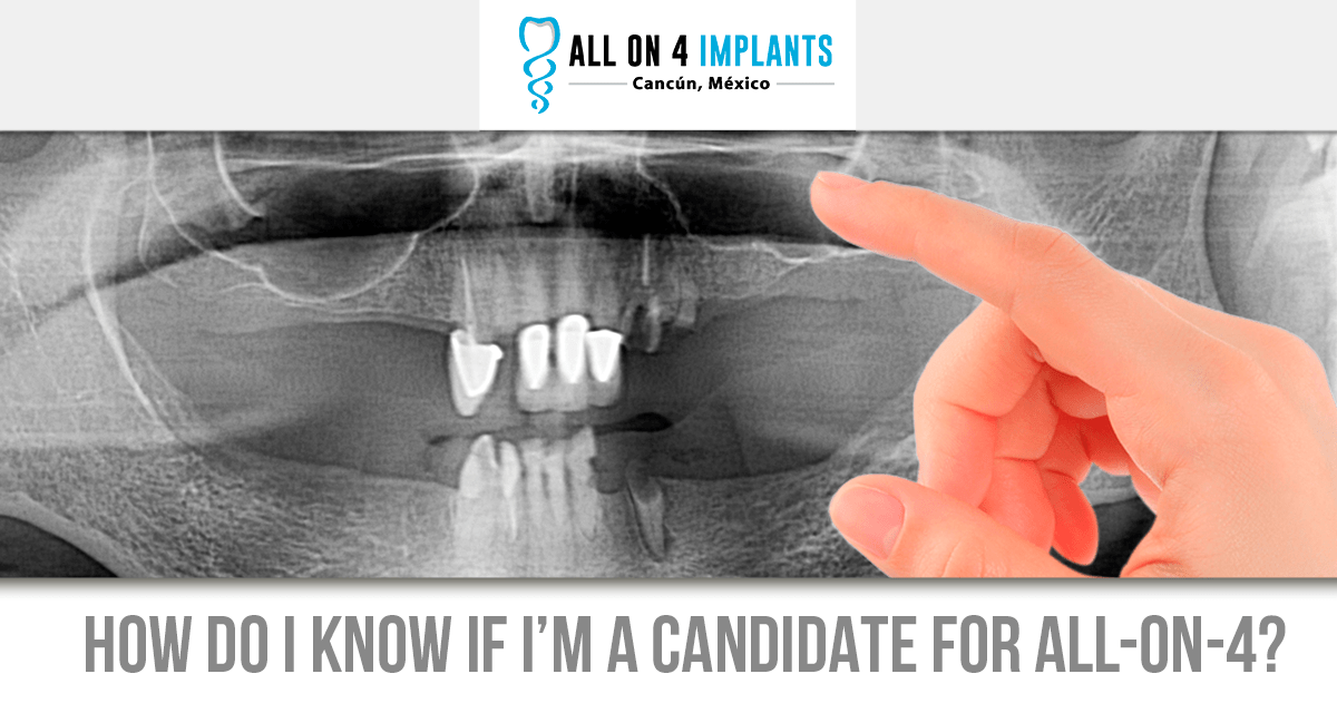 How to tell if Im a candidate for All-on-4 dental implants in Cancun?