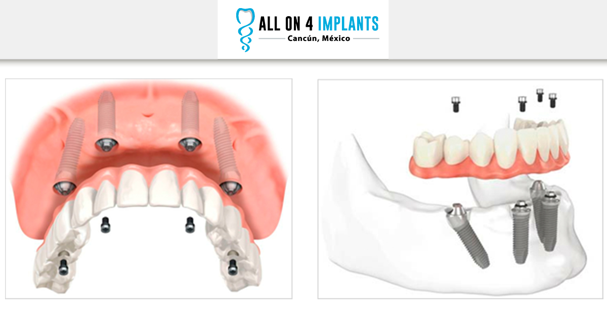 Difference between All on 4 and other dental Implant treatments