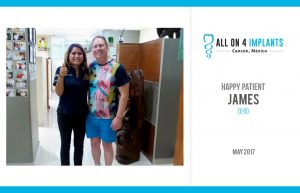 All-on-4 happy patient: James!
