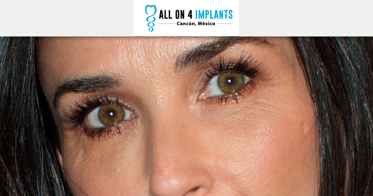 stress-teeth-tooth-losing-bruxism-demi-moore-all-on-4-dental-implants