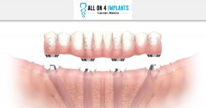 What do you need to get an All-on-4 dental implant treatment?