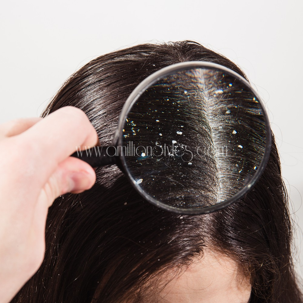 Check Out Ways To Treat Hair Dandruff