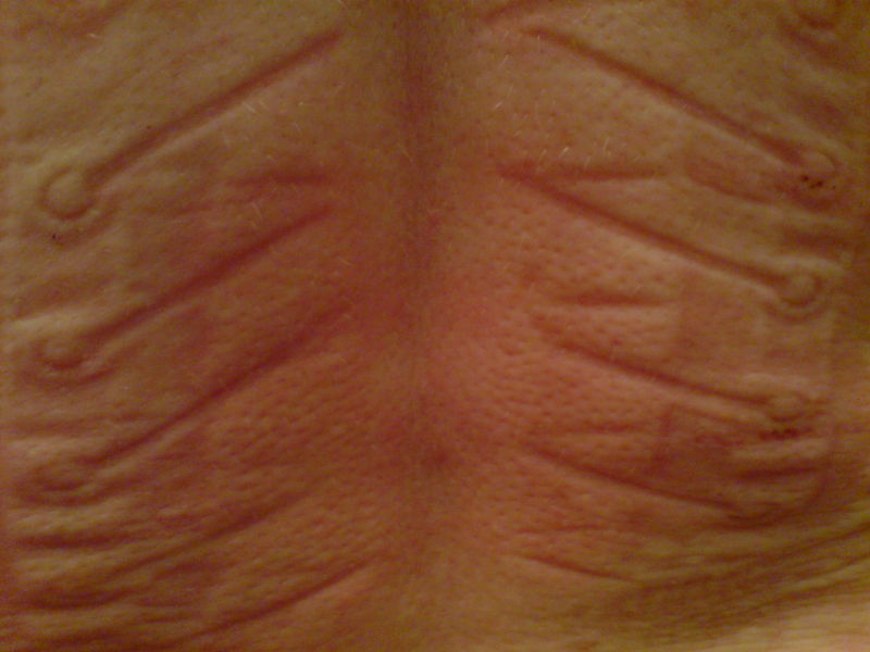 147d6a233e Corset Marks Left Skin