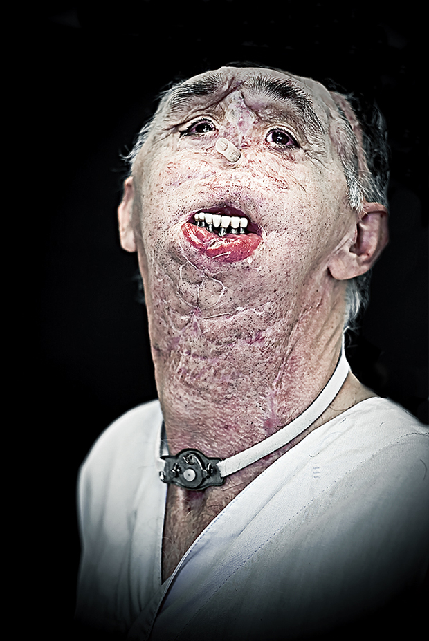 People Undergoing Facial Reconstruction Are Photographed