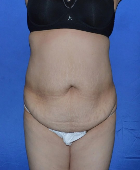 Abdominoplasty Procedure