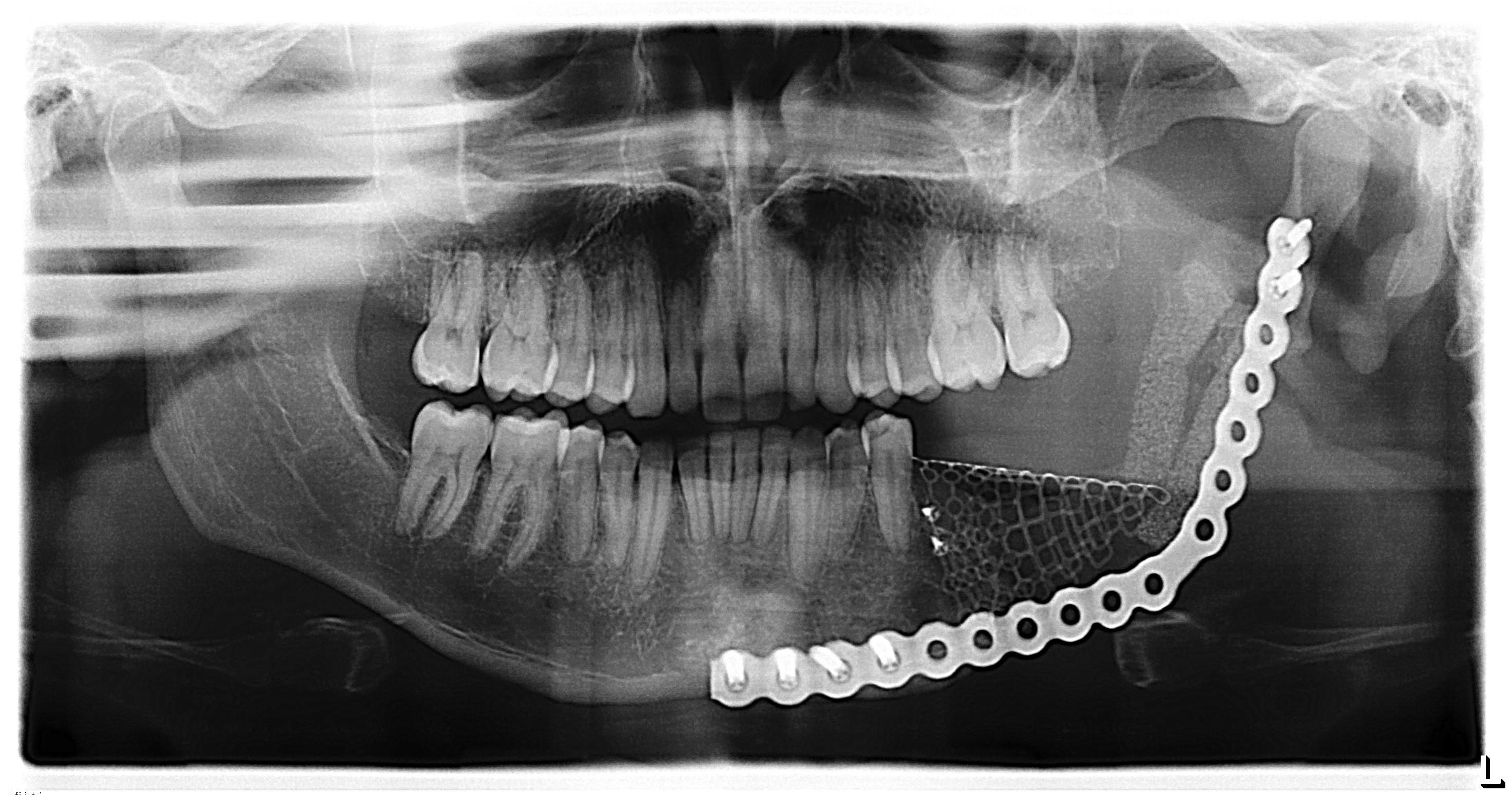 ameloblastic fibroma radiograph - HD2945×1549