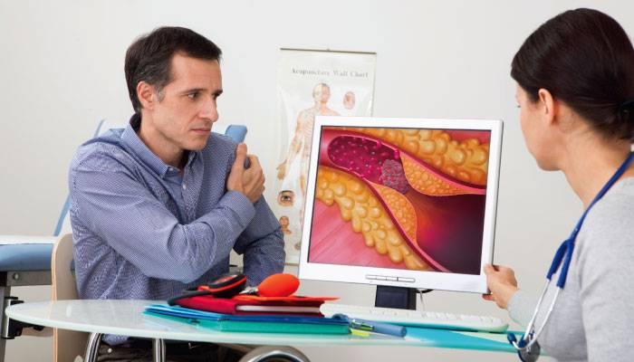 Ateroskleroz diagnostikasi