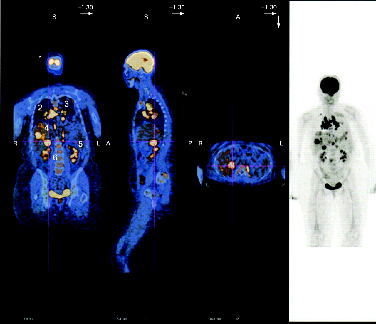 Whole Body 18 Fdg Pet Ct Imaging For Lymph Node And