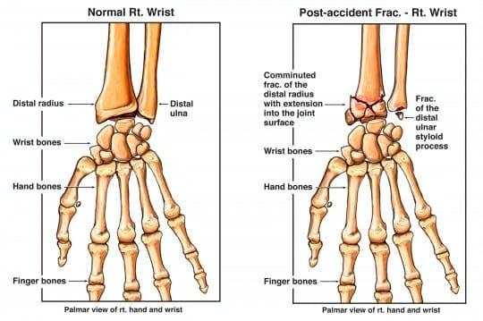 Radius And Ulna Fracture Treatment