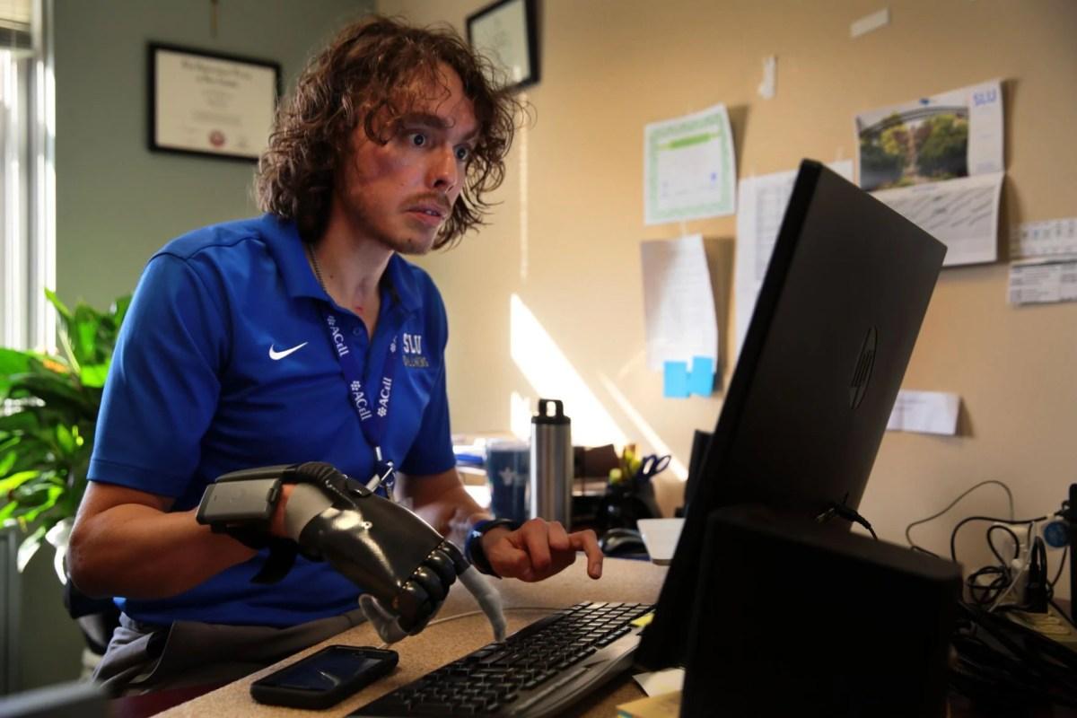 Chimp attack survivor starts new trauma care program at SLU | Metro | stltoday.com