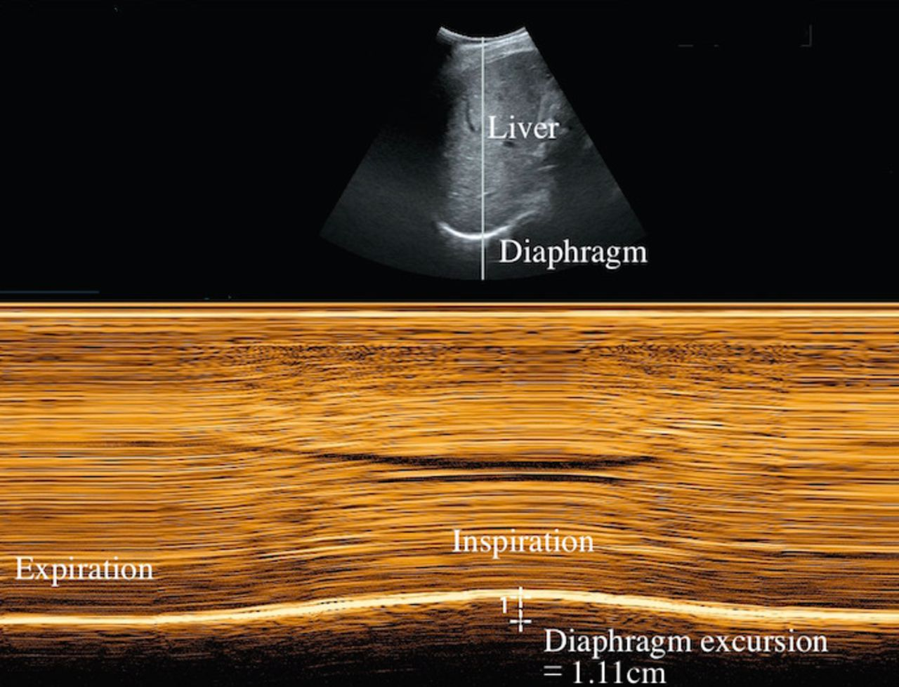 The Predictive Value Of Serial Changes In Diaphragm