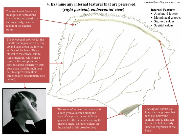 How To Identify And Side Parietal Bones Bone Broke
