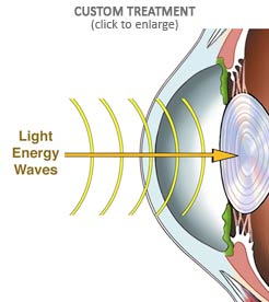 Custom Laser Vision Treatment