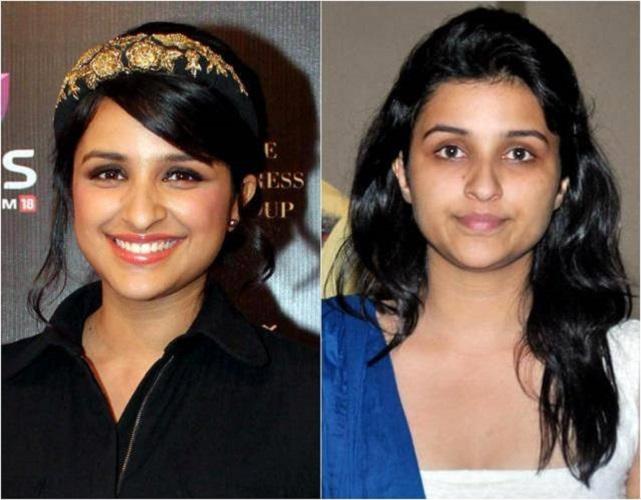 Kareena Kapoor Plastic Surgery After