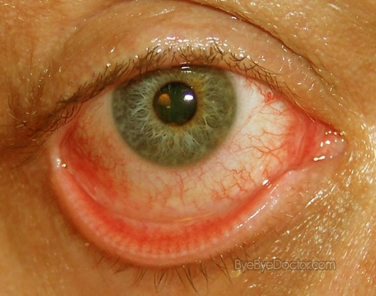 Dyshidrotic Eczema Ointment