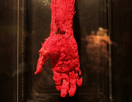 Blood Vessel Configuration Of The Hand Body World Vital