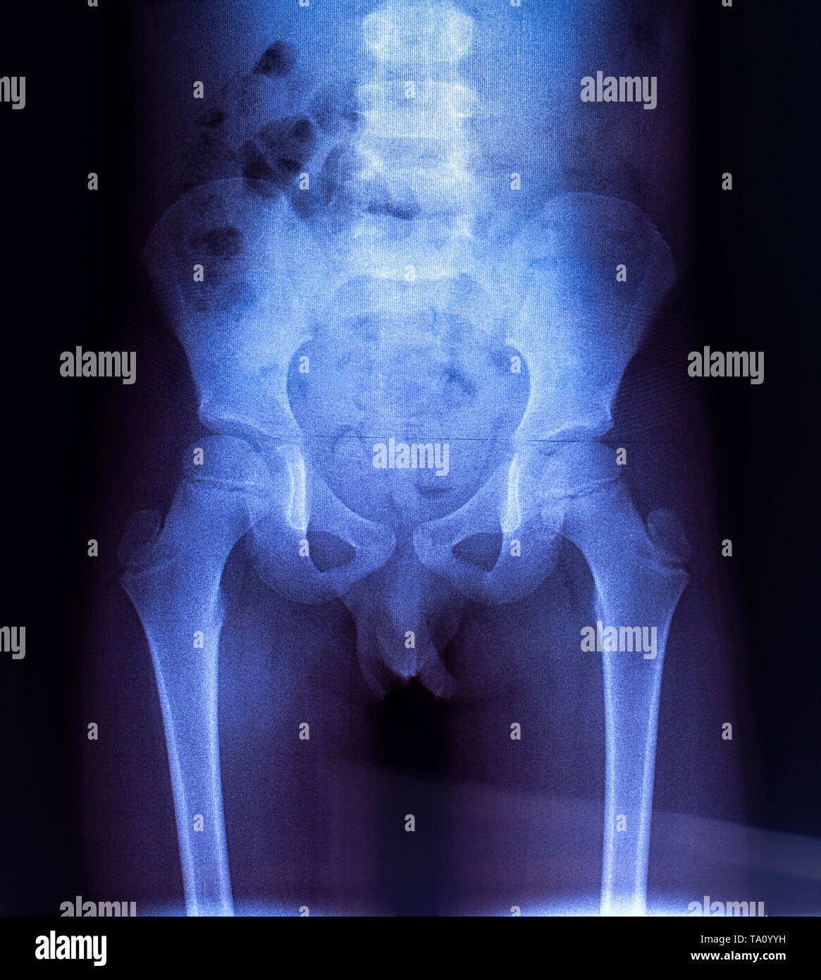 Hip Osteoarthritis X Ray Stock Photos & Hip Osteoarthritis ...