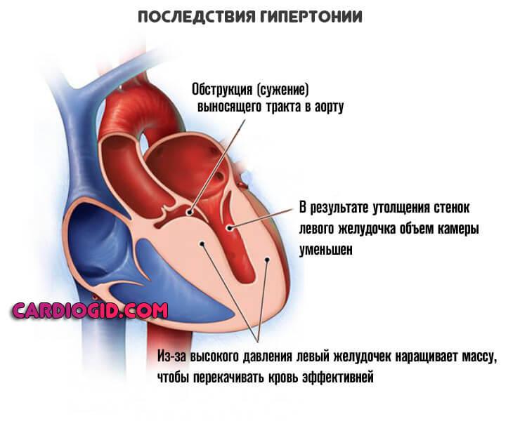 салдары - гипертония