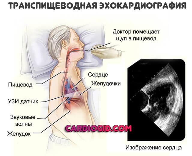 transesophageal ekkokardiografi