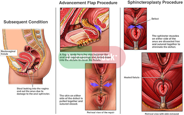 Gyn Operations And Procedures