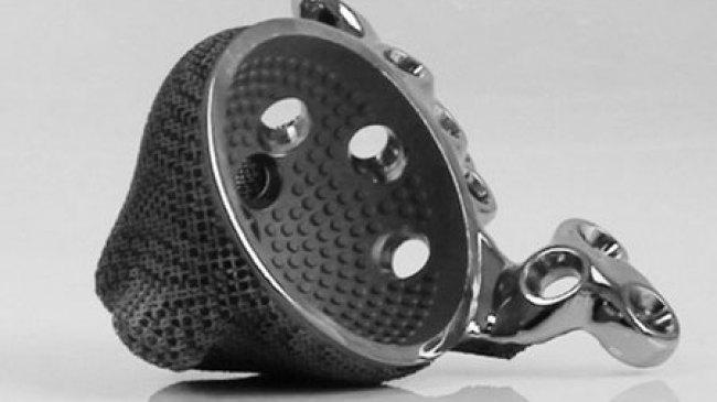 Printer 3D Bantu Atasi Masalah Kelumpuhan