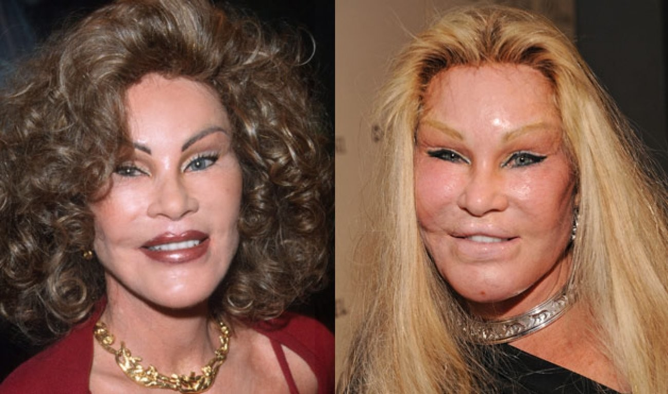 knight and sanders plastic surgery - 1280×720