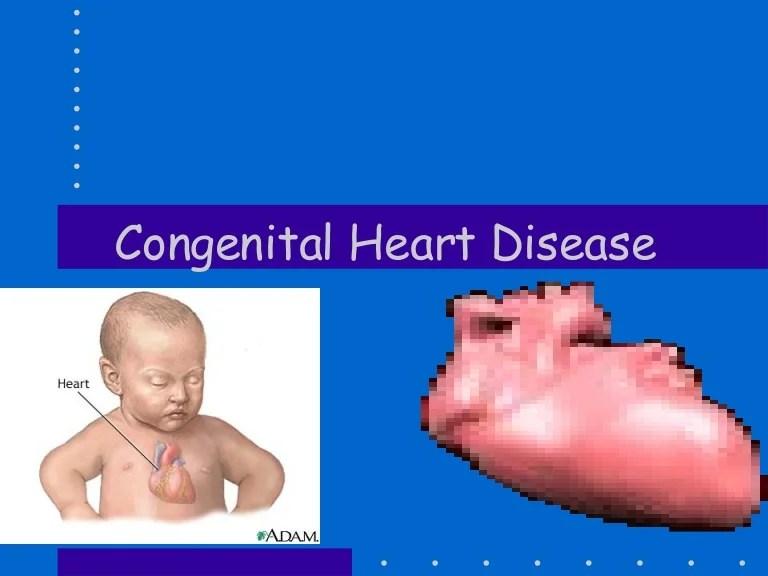 congenital heart disease in children - 768×576