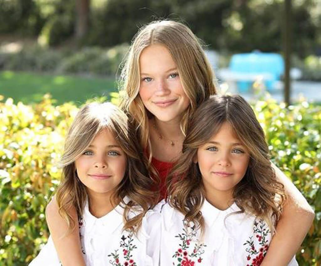most beautiful twins in the world - 800×663