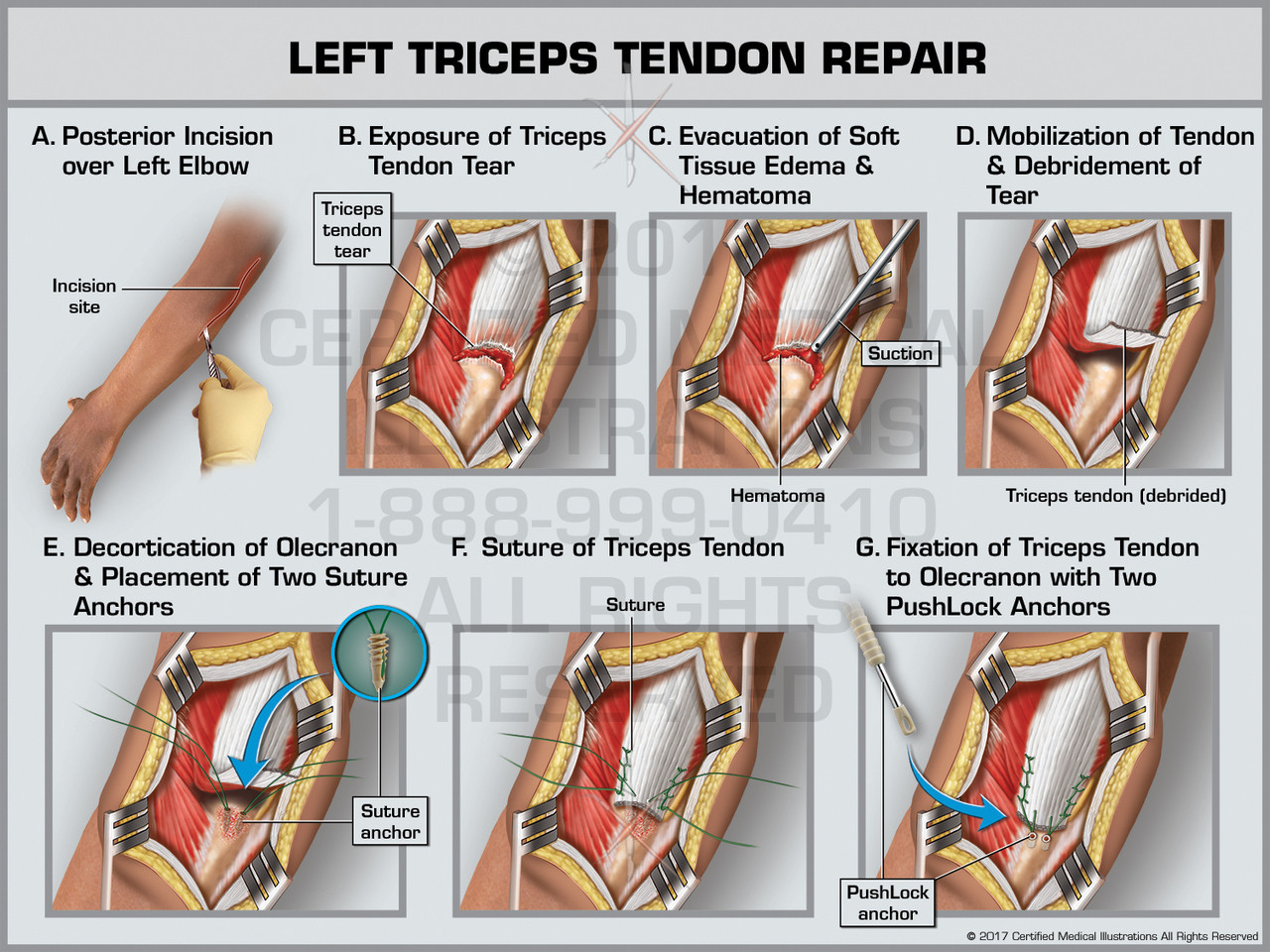 Triceps Reconstruction Protocol
