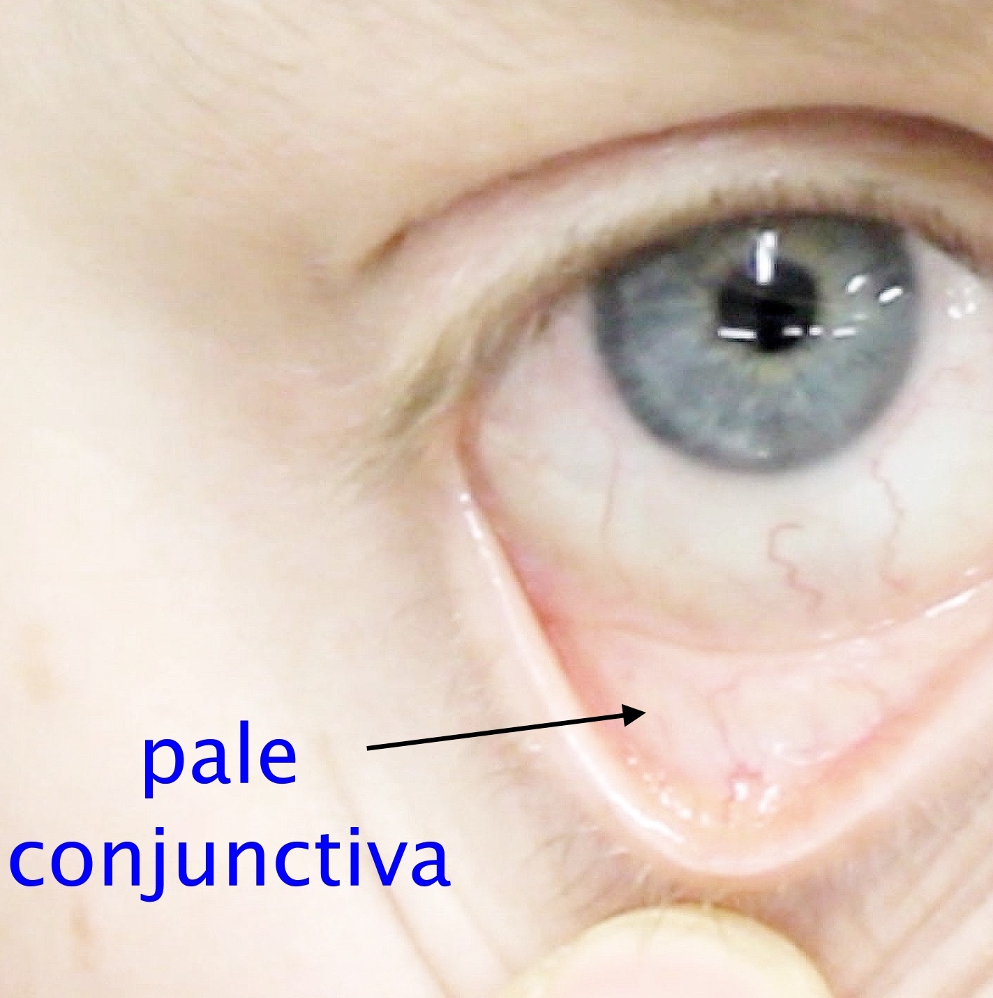 And Conjunctival Skin Pallor