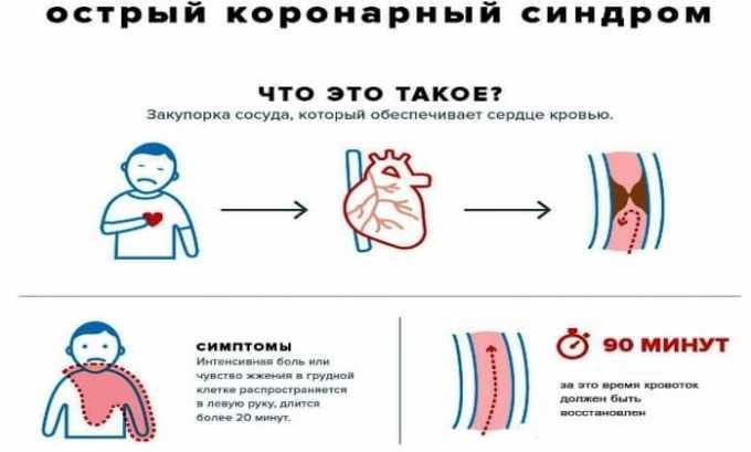 利多卡因的使用显示在急性冠状动脉综合征中