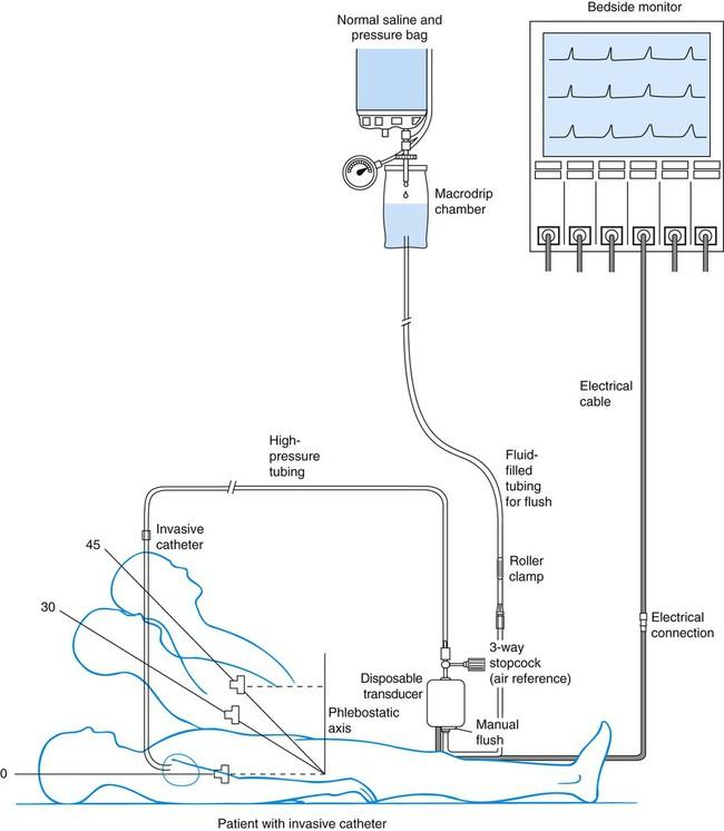 Set Arterial Line Pressure