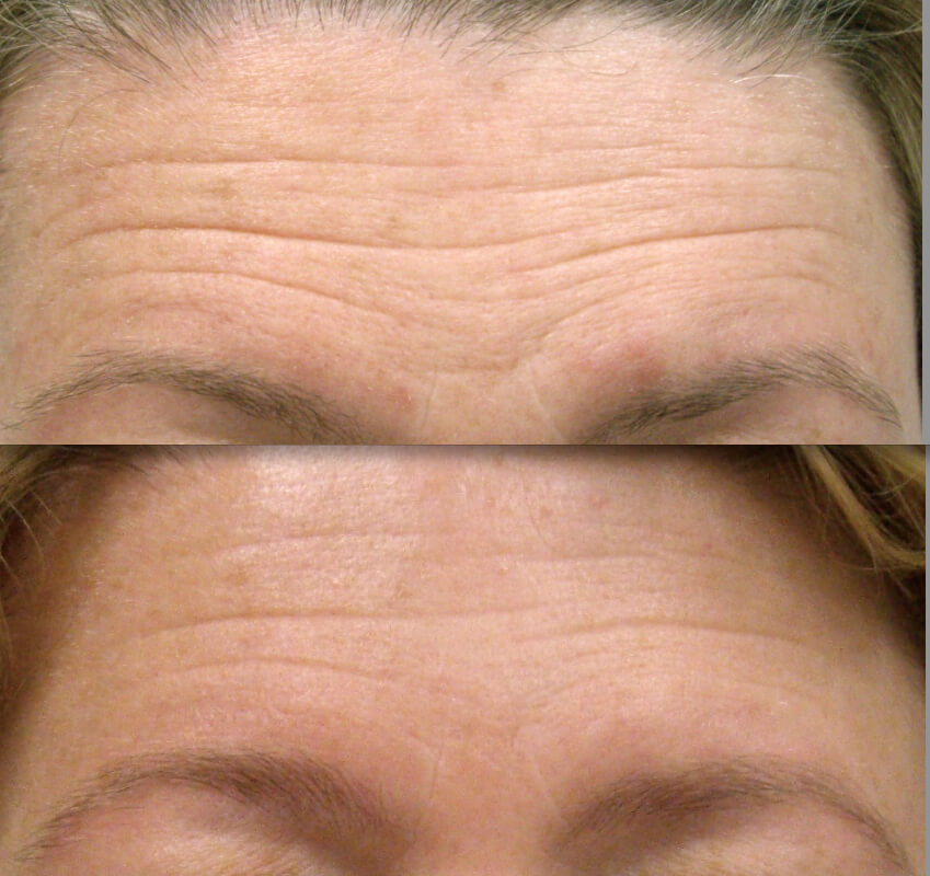 Skin Care Products Whitening