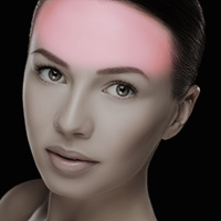 laser hair removal forehead