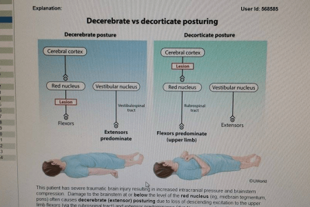 Decorticate And Decerebrate Posturing Which Is Worse     Oh Decor Curtain Decorticate Posturing Neuro Refle Newborn Nursery Stanford Ine Erb S Palsy  Hannah Conway On Twitter Posture