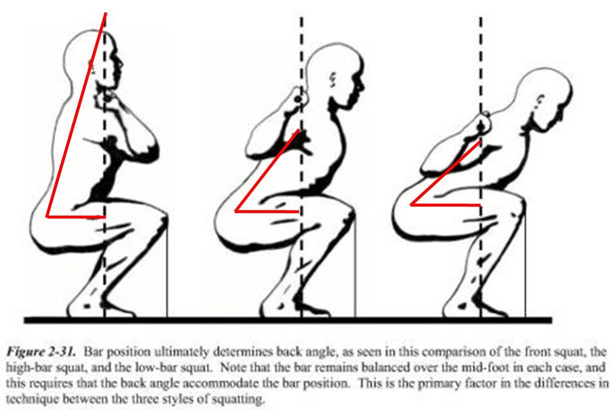 Shoulder Pain After Bench Press