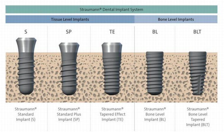 Level Tissue Level Implant Vs Bone