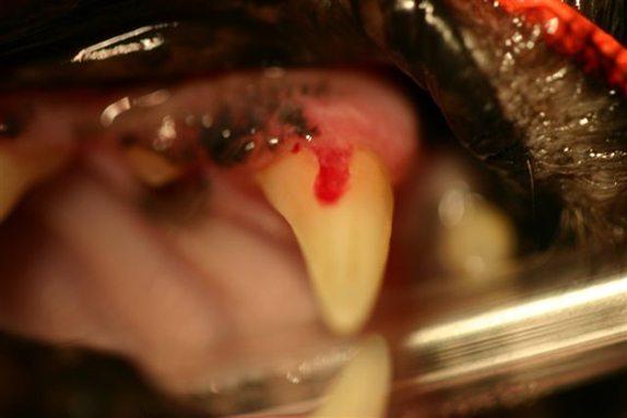 Line Gum Tooth Broken