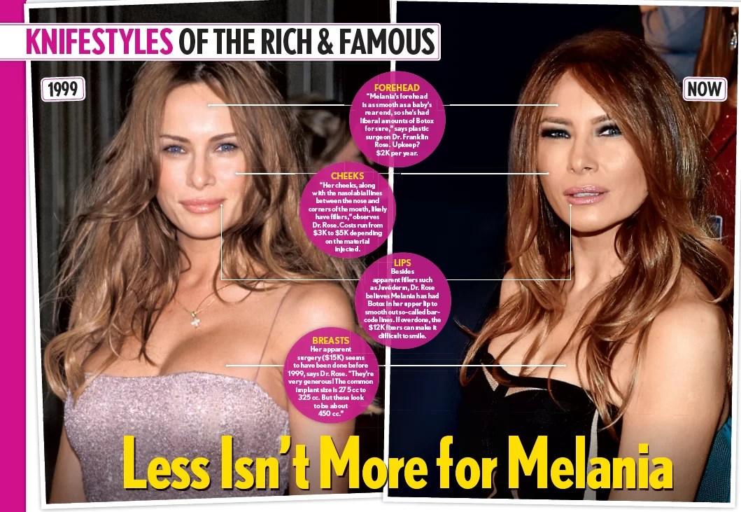 Melania Trump Plastic Surgery on Inside Edition - Franklin ...