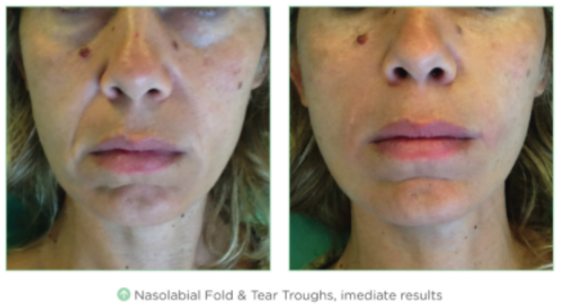 Fresh Skin Care And After
