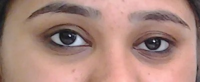 What do I do about having two different sized eyes? (photo ...