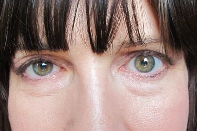 Eyes 2 Different Sizes: Excess Eyelid Skin or Unsuccessful ...