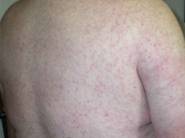 West Nile Virus Head Ache