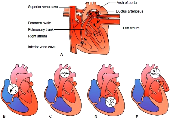 Heart Disease. Classifications of Heart Disease ...