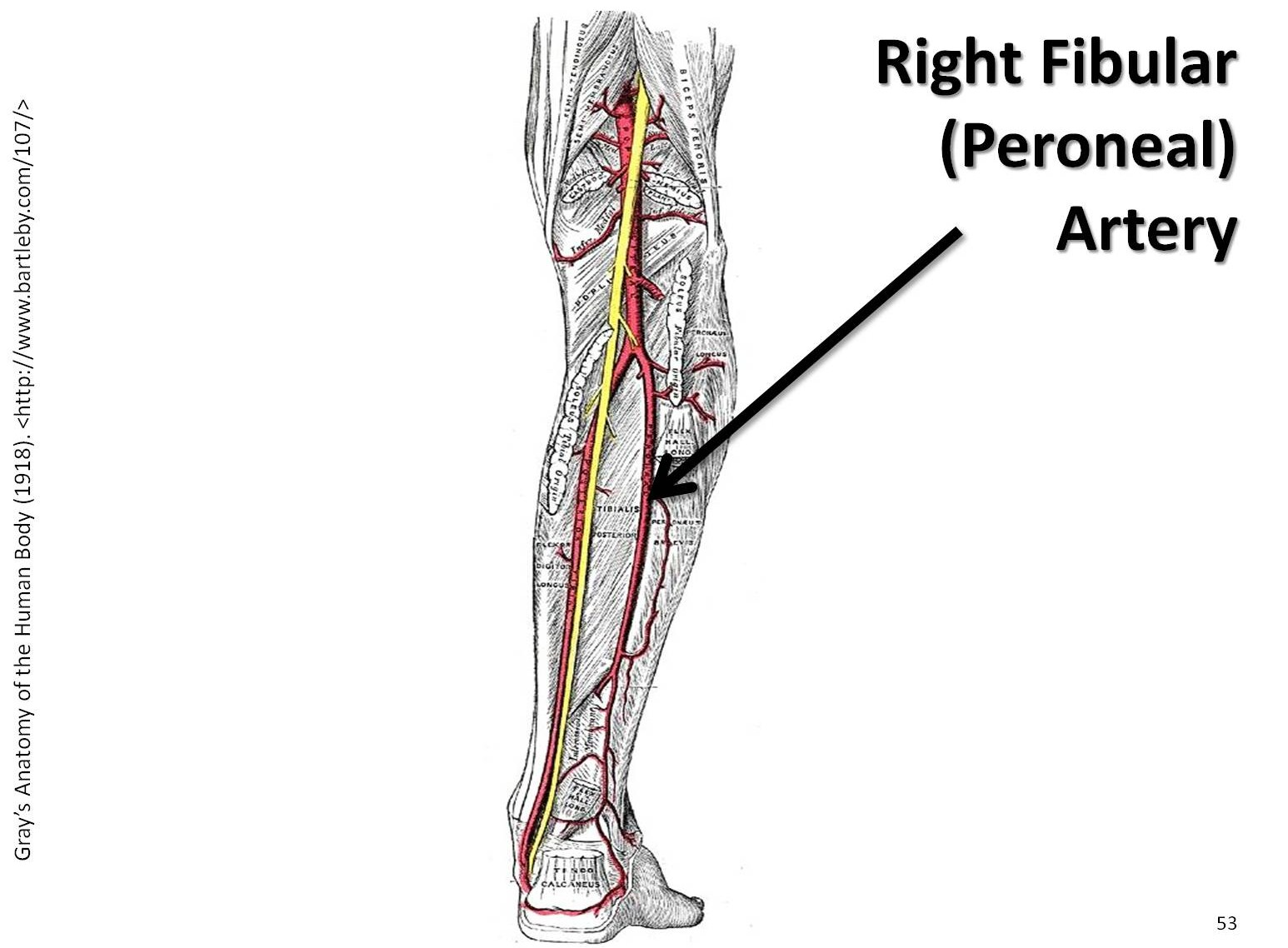 Posterior Tibial Artery To Popliteal Bypass