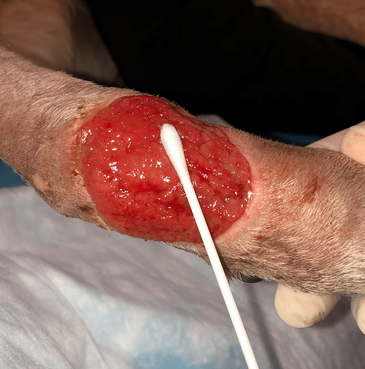Expressing Pus Wound