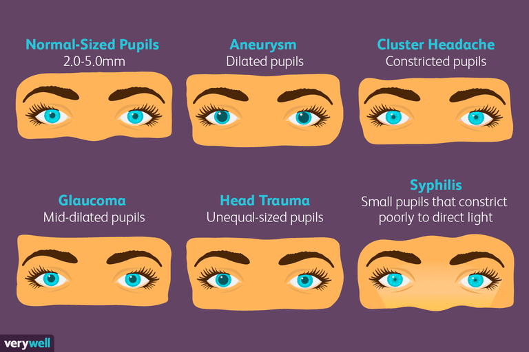 Pupil Size - Medical Problems