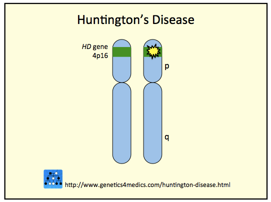 Huntingtons Karyotype Disease