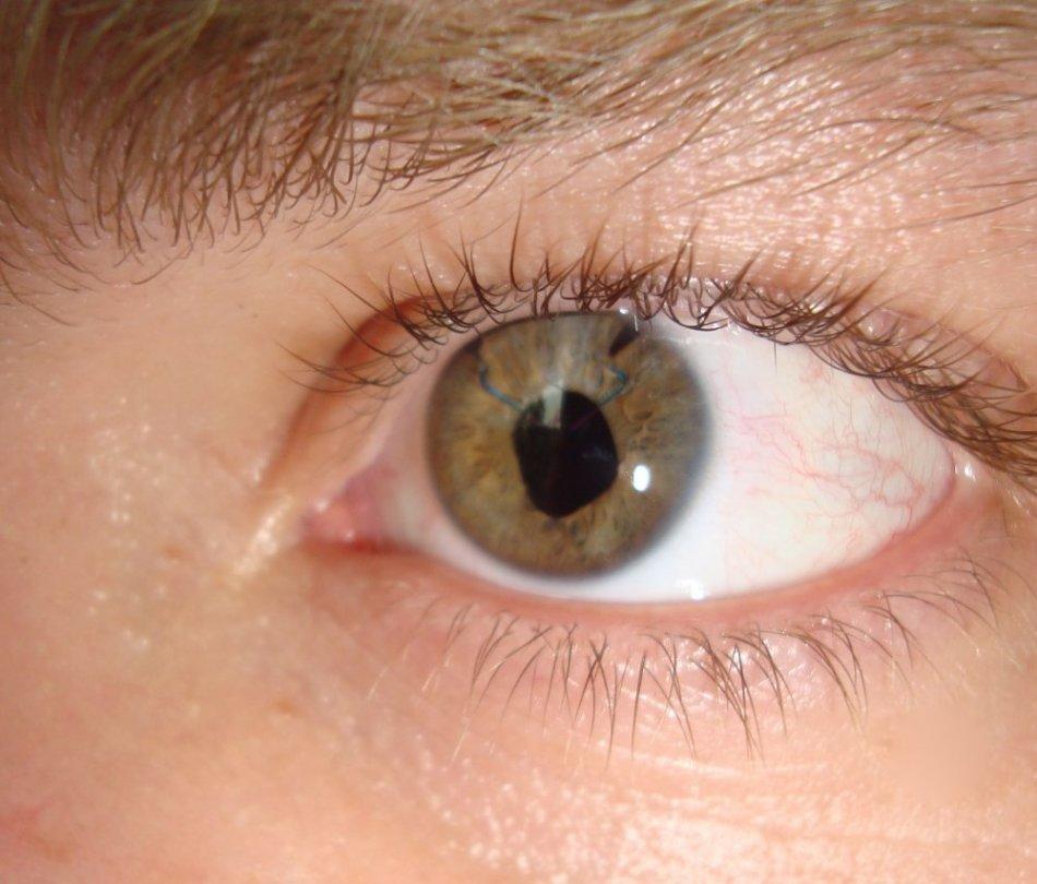 Как снимают швы после операции на глазах?